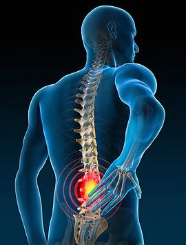 Therapeutic Insight & Articles - Myofascial Release - John F  Barnes, PT